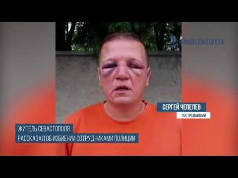 Севастополец заявил, что его избили полицейские