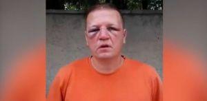 Полиция избила военного пенсионера из Севастополя