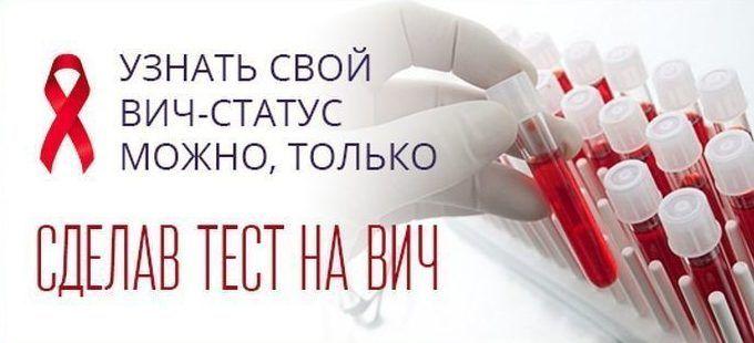 29 ноября в Севастополе в центре города горожане смогут узнать свой ВИЧ-статус