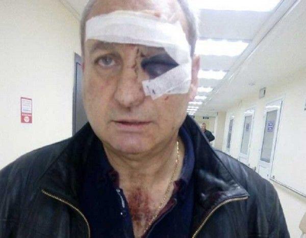 В Крыму зверски избили известного барда