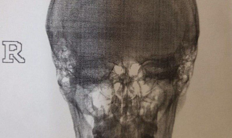 Клиент всегда прав? В Симферополе «горячий южный» таксист избил пассажира