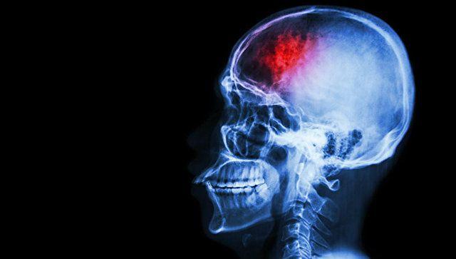 Топ-5 действий при инсульте: как спасти человека - советы врача