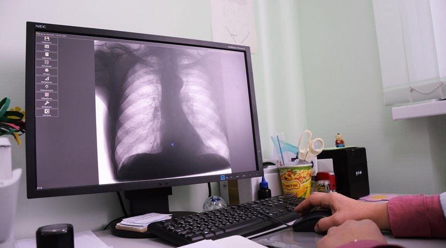 Уровень заболеваемости внебольничными пневмониями в Крыму вырос на треть за неделю