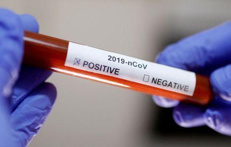 В Крыму выявили 167 новых случаев коронавируса за сутки