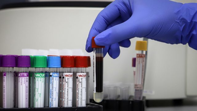 Двое умерших и 82 заболевших: сводка по коронавирусу в Севастополе
