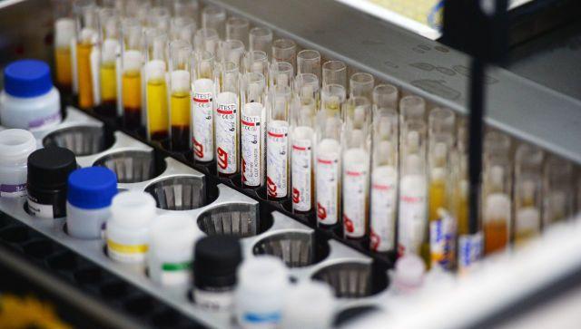 Крым стал лидером по заболеваемости ВИЧ среди двух федеральных округов