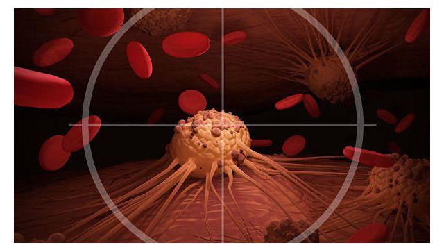 Ученые назвали неожиданный симптом онкологии
