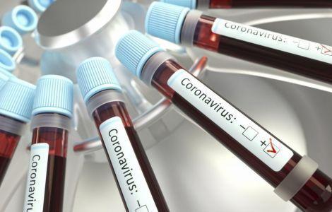 В Крыму выявили 328 новых случаев коронавируса за сутки