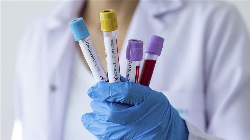 За 24 февраля на территории Республики Крым зарегистрировано 67 случаев коронавирусной инфекции