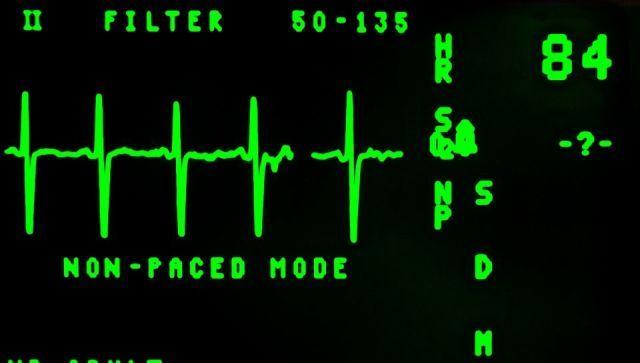 """Как пережить резкие перемены погоды: врач дала советы """"сердечникам"""""""