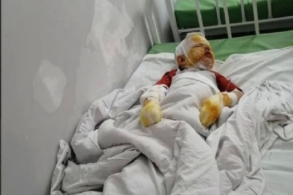 В Крыму против отца, взорвавшего газовый баллон рядом с сыном, возбудили уголовное дело